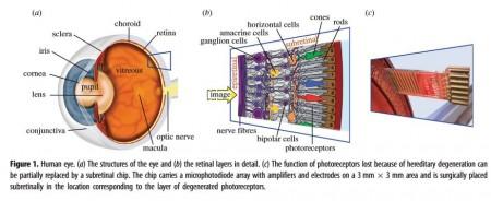 22 Retina 1